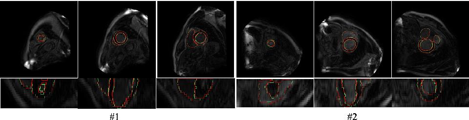 Figure 4 for An Automatic Cardiac Segmentation Framework based on Multi-sequence MR Image