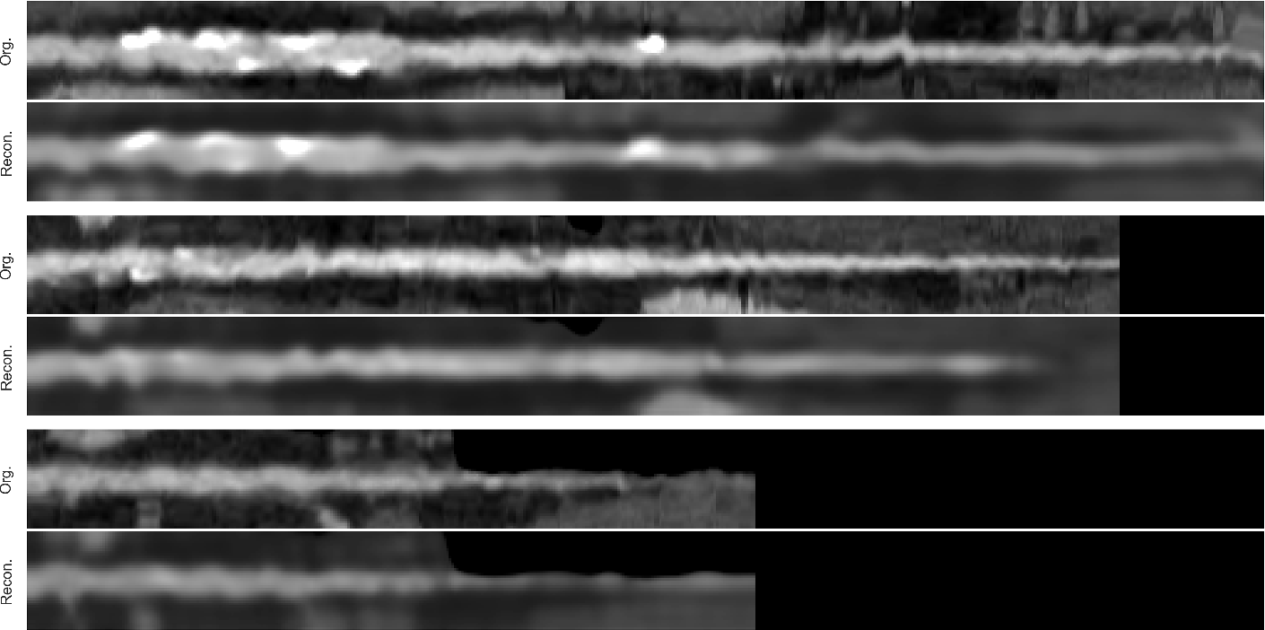 Figure 3 for Combined analysis of coronary arteries and the left ventricular myocardium in cardiac CT angiography for detection of patients with functionally significant stenosis