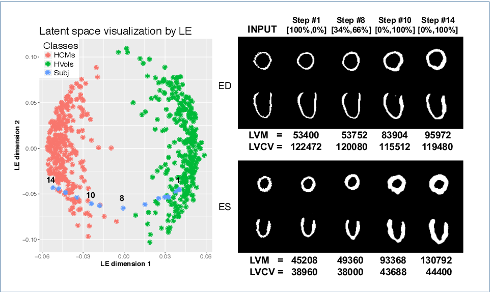 Figure 2 for Learning Interpretable Anatomical Features Through Deep Generative Models: Application to Cardiac Remodeling