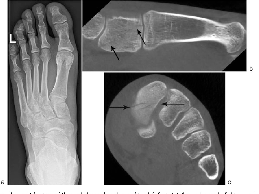 Figure 13 from Cone Beam CT of Trauma of Small Bones and Joints ...