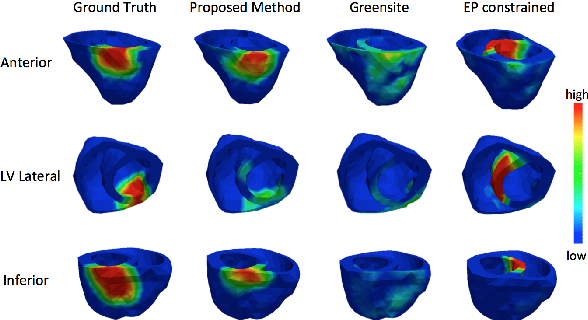 Figure 4 for Generative Modeling and Inverse Imaging of Cardiac Transmembrane Potential