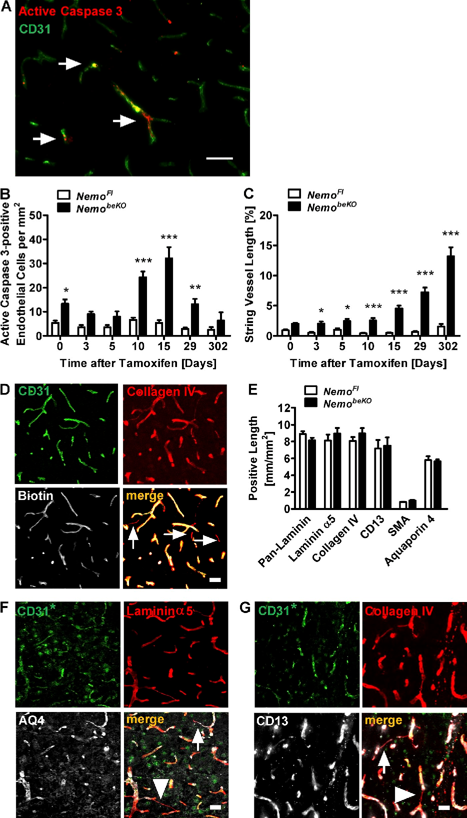 Figure 2 from Brain endothelial TAK1 and NEMO safeguard the