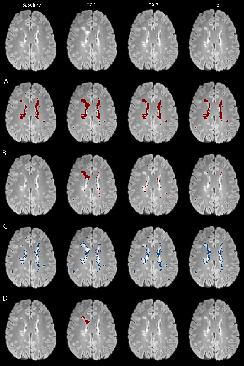Figure 3 for Automatic detection of lesion load change in Multiple Sclerosis using convolutional neural networks with segmentation confidence