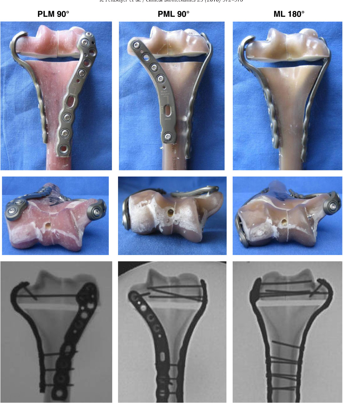 Anatomical plate configuration affects mechanical performance in ...