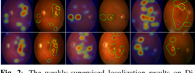 Figure 3 for Weakly-supervised localization of diabetic retinopathy lesions in retinal fundus images