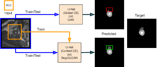 Figure 1 for A context based deep learning approach for unbalanced medical image segmentation