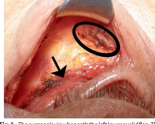 Lysis of the orbicularis retaining ligament and orbicularis oculi ...
