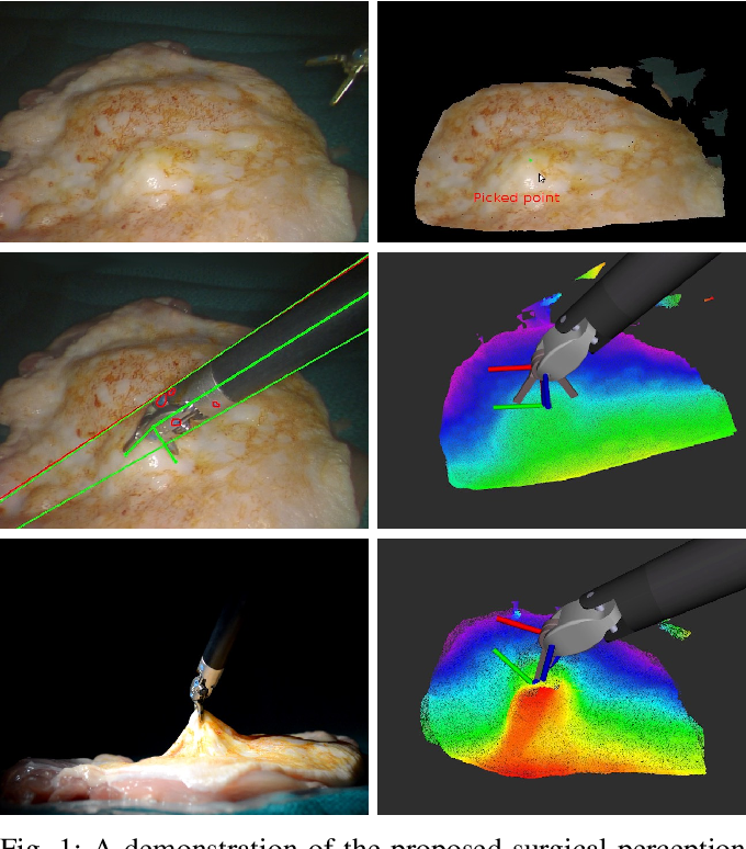 Figure 1 for SuPer: A Surgical Perception Framework for Endoscopic Tissue Manipulation with Surgical Robotics