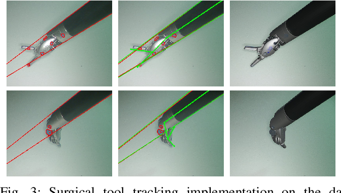 Figure 3 for SuPer: A Surgical Perception Framework for Endoscopic Tissue Manipulation with Surgical Robotics