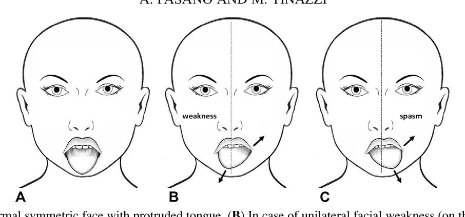 Facial unilateral weakness