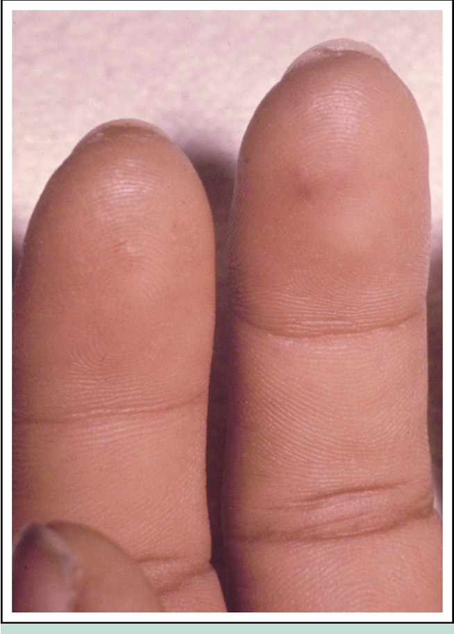 figure 1 from osler s nodes and janeway lesions semantic scholar