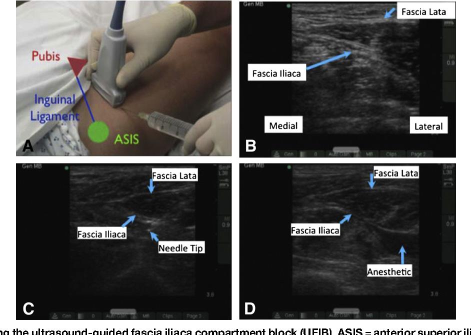 Ultrasound in Emergency Medicine ULTRASOUND-GUIDED FASCIA ILIACA ...