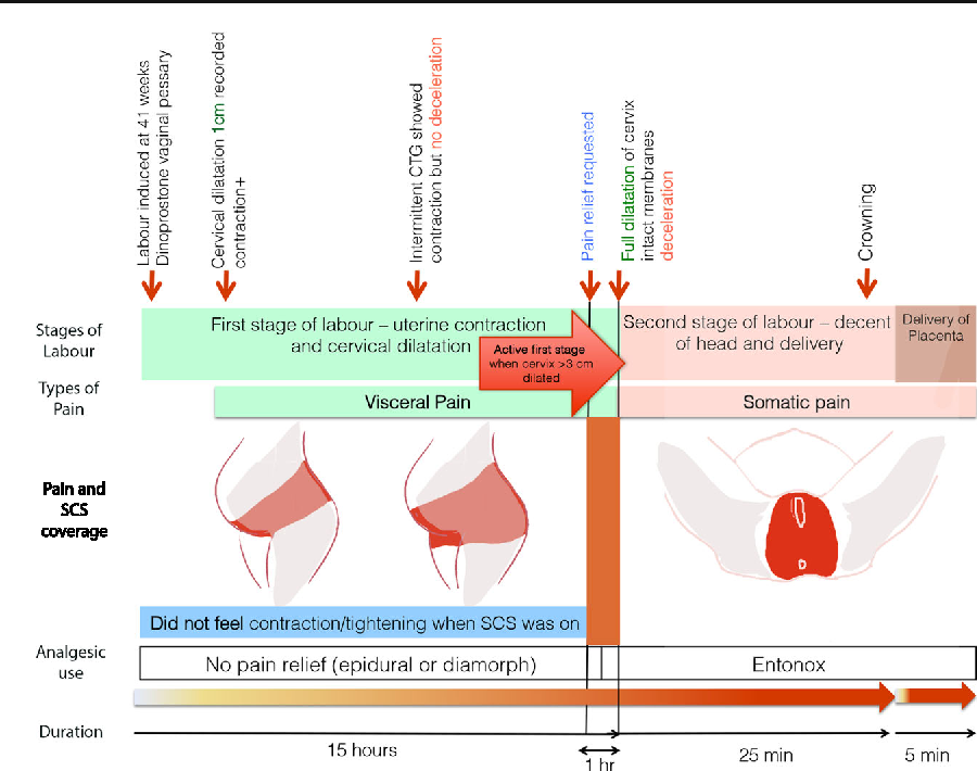 Fig. 1 Device use during the intranatal period
