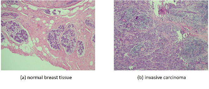 Figure 1 for Discriminative Pattern Mining for Breast Cancer Histopathology Image Classification via Fully Convolutional Autoencoder