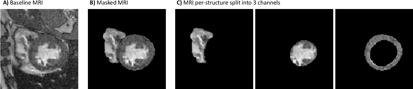 Figure 3 for Federated Learning for Multi-Center Imaging Diagnostics: A Study in Cardiovascular Disease