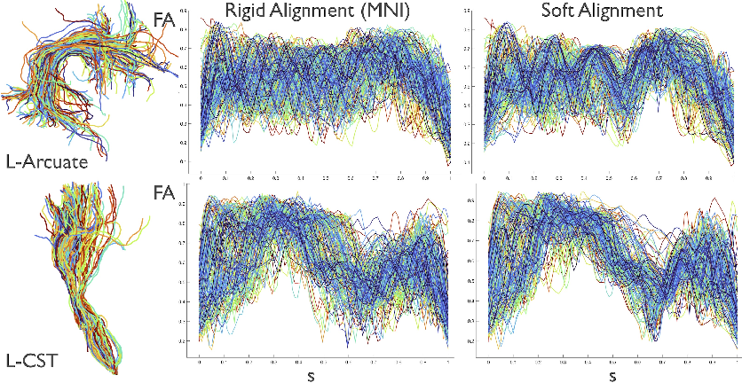 Figure 2 for Alignment of Tractography Streamlines using Deformation Transfer via Parallel Transport