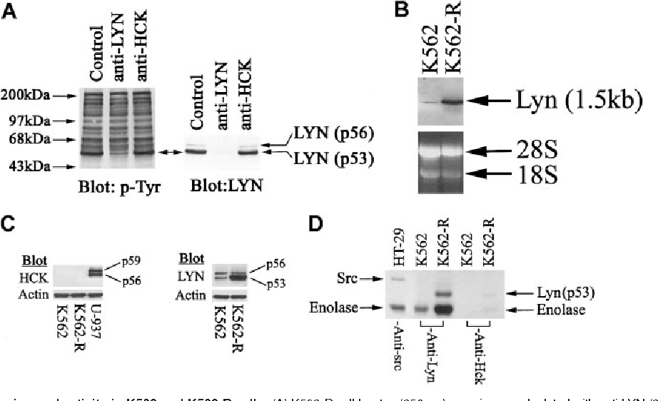 """Figure 6. LYN kinase expression and activity in K562 and K562-R cells. (A) K562-R cell lysates (250 g) were immunodepleted with anti-LYN (2 g) or anti-HCK (2 g) and proteinA/G–sepharose, and resultant supernatants were analyzed for total tyrosine phosphoproteins (p-Tyr; left) or LYN (right). Migration of protein standards is shown on the left, and the 2 forms of LYN expressed in K562-R cells are shown on the right. (B)Twenty micrograms RNAfrom K562 and K562-R cells was resolved by electrophoresis, transferred to a membrane, and hybridized with a LYN probe as described in """"Materials and methods."""" The extent of hybridization with probe is shown (top), and the migration of 28S and 18S RNAis shown at the bottom. (C) Equal protein (30 g) K562 and K562-R cell lysates were subjected to immunoblotting for HCK (left) and LYN (right). U-937 cell lysates were used as a positive control for HCK. Two forms of LYN (but not HCK) were detected in K562 cells, and the p53 form of LYN was overexpressed in K562-R cells. The same blots were probed with antiactin to monitor protein loading. (D) LYN or HCK immune complexes from K562 and K562-R cells were analyzed for tyrosine kinase activity in the presence of [32P]-ATP and enolase as described in """"Materials and methods."""" Src immune complexes from HT-29 cells were used as a positive control. Phosphorylation was detected by autoradiography on x-ray film. LYN autophosphorylation was detected in K562-R immune complexes, while exogenous substrate (enolase) phosphorylation was detected in both K562 and K562-R immune complexes. K562-R cell enolase phosphorylation was estimated (by PhosphorImager) to be approximately 7-fold higher than K562 cells."""