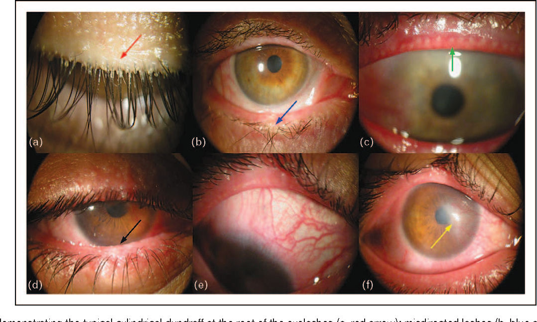 Pathogenic Role Of Demodex Mites In Blepharitis Semantic Scholar