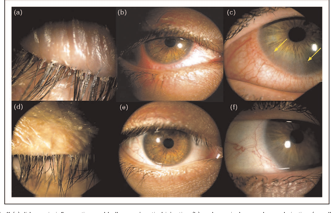 Figure 4 From Pathogenic Role Of Demodex Mites In Blepharitis