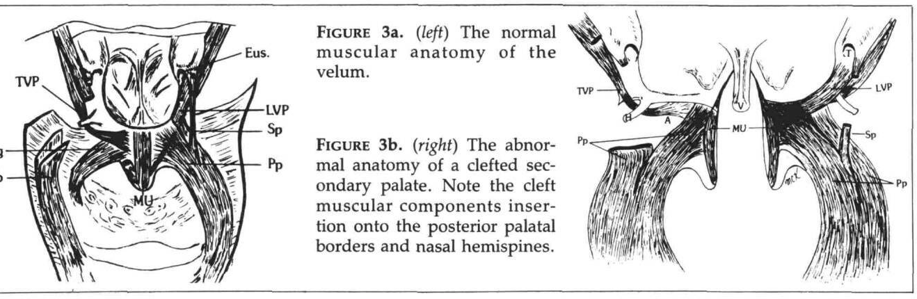 Submucous cleft palate: review and two clinical reports. - Semantic ...