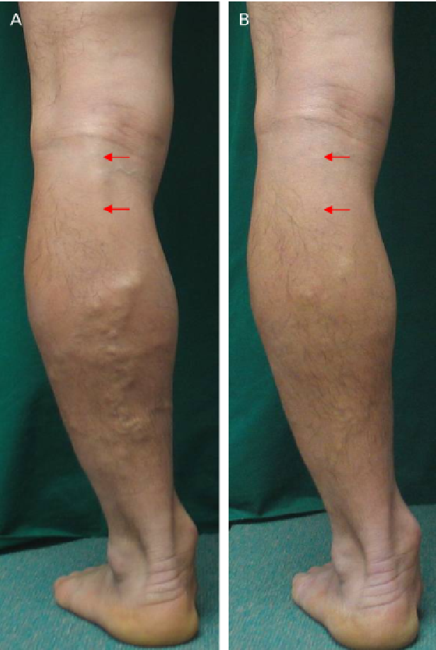 Endovenous Laser Treatment Of The Small Saphenous Vein With A 980 Nm