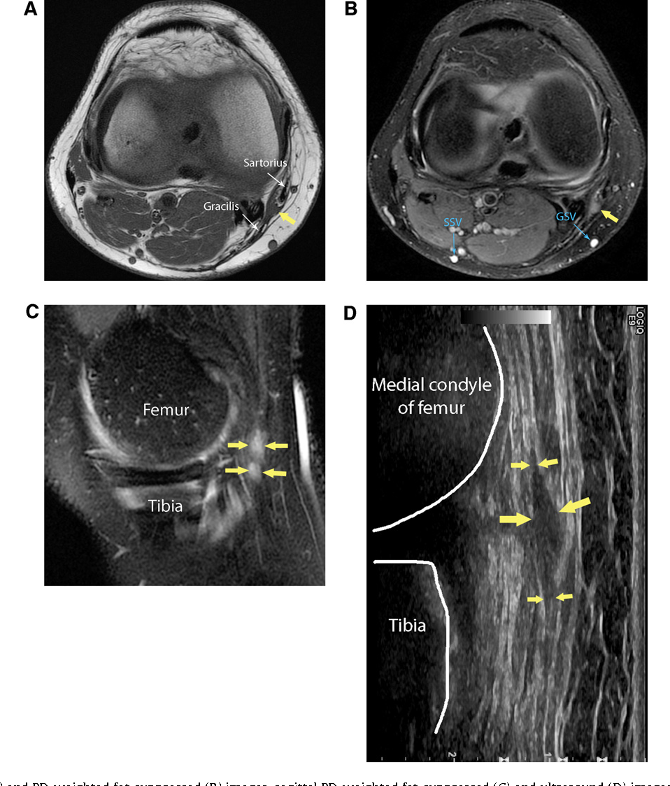 Fig. 9. Axial T1-weighted (A) and PD-weighted fat-suppressed (B) images, sagittal PD-weighted fat-suppressed (C) and ultrasound (D) images of a right knee. Post surgery n es su v