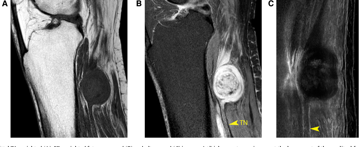 Fig. 12. Sagittal T1-weighted (A), PD-weighted fat-suppressed (B) and ultrasound (C) images. A tibial nerve tumor is seen at the lower part of the popliteal fossa, eccentric to the nerve trunk and surrounded by a fat plane. The tumor has a target-like appearance. These features are typical of a schwannoma of the tibial nerve.