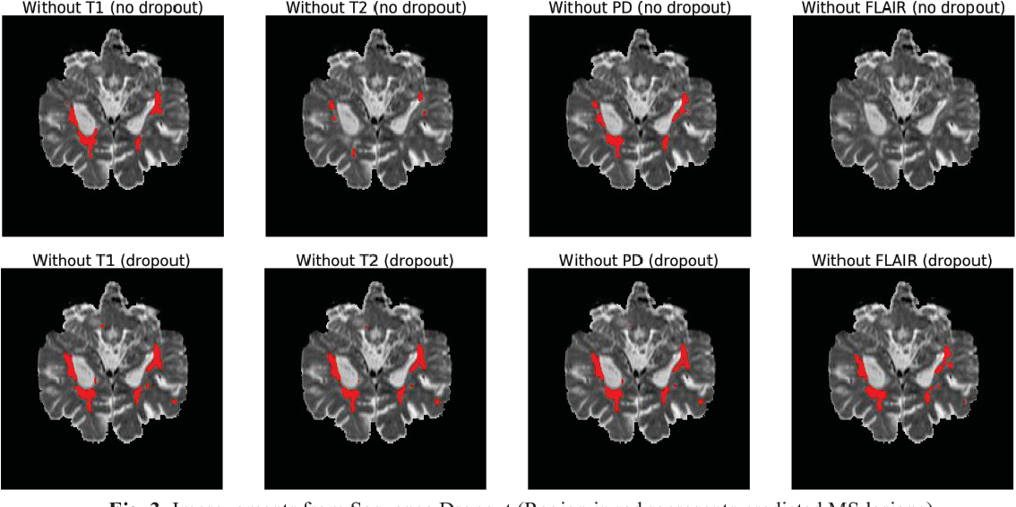 Figure 3 for A Self-Adaptive Network For Multiple Sclerosis Lesion Segmentation From Multi-Contrast MRI With Various Imaging Protocols