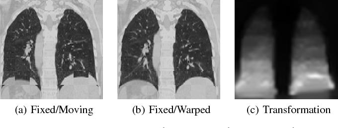 Figure 3 for AirLab: Autograd Image Registration Laboratory