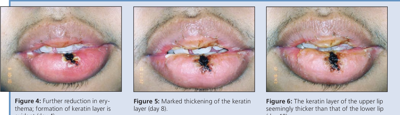 Figure 5 from Exfoliative cheilitis: report of a case