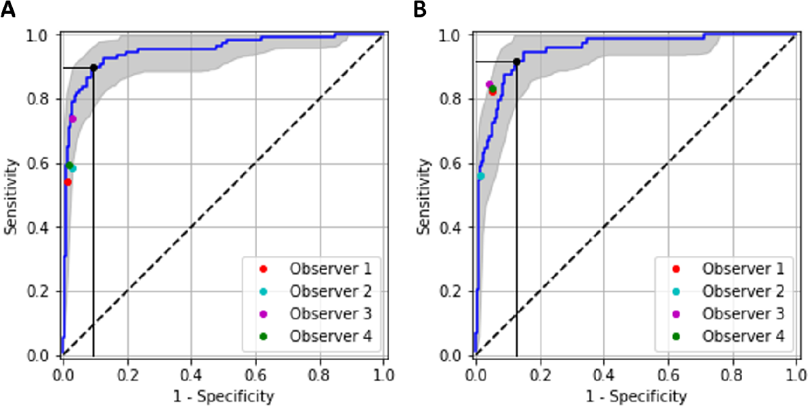 Figure 2 for Evaluation of a deep learning system for the joint automated detection of diabetic retinopathy and age-related macular degeneration