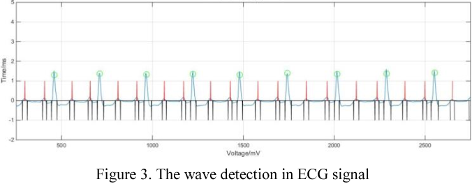 Figure 3 for ECG beats classification via online sparse dictionary and time pyramid matching