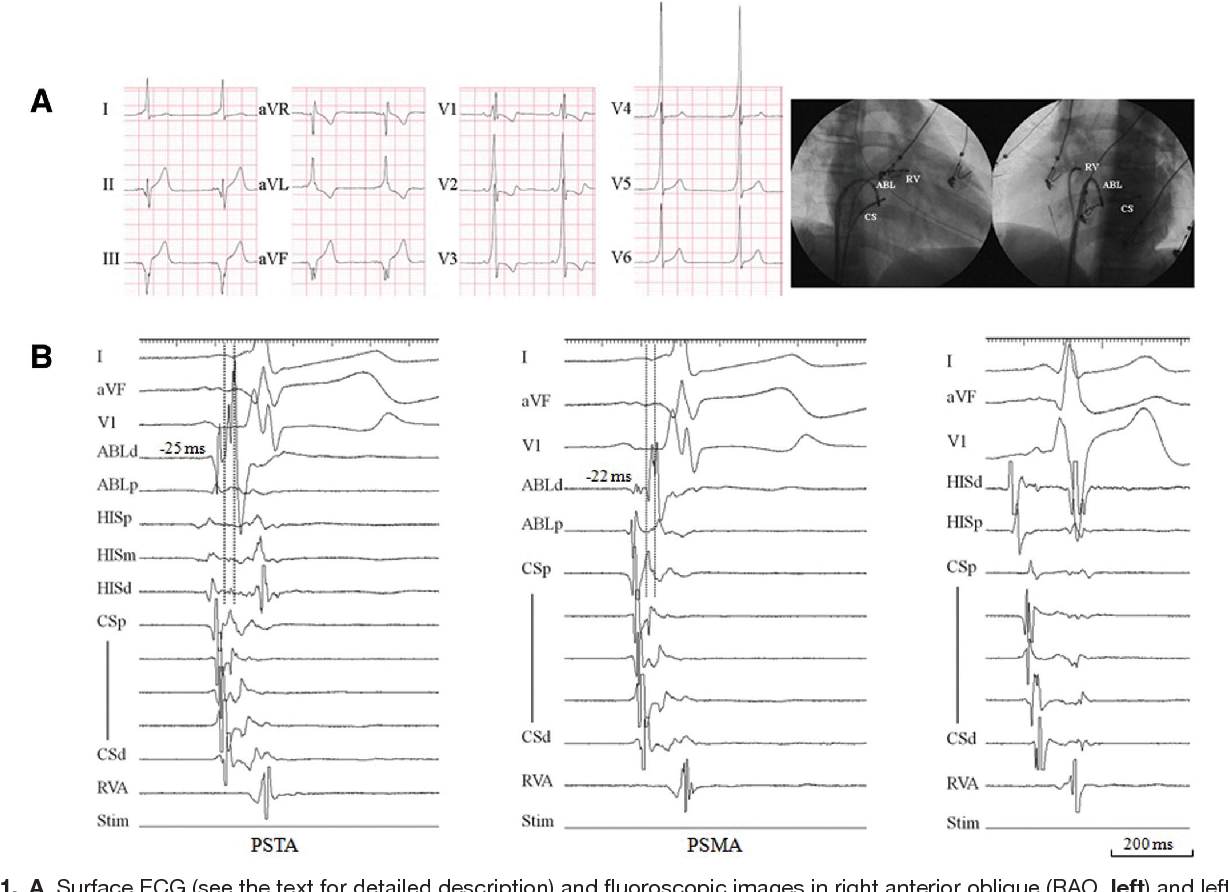 Approach to the difficult septal atrioventricular accessory pathway ...