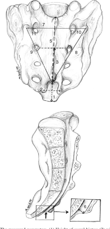 Landmarks of the sacral hiatus for caudal epidural block: an ...