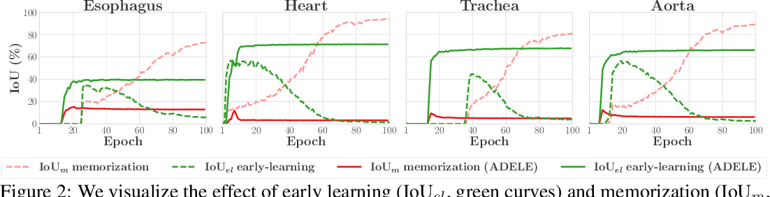 Figure 3 for Adaptive Early-Learning Correction for Segmentation from Noisy Annotations
