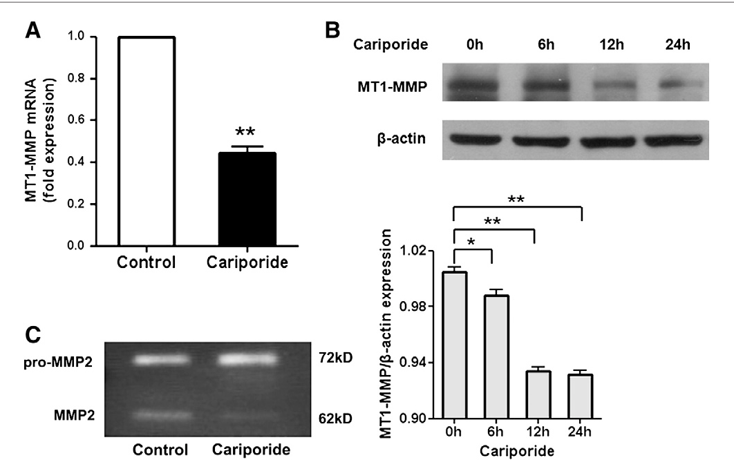 Fig. 2 – Effects of Cariporide on the expression and activity of MT1-MMP in MDA-MB-231 cells. (A) Real-time quantitative PCR analysis of MT1-MMPmRNA in MDA-MB-231 cells with or without Cariporide (10 μM) for 24 h. (B) MDA-MB-231 cells were treated with Cariporide (10 μM) for 0 h, 6 h, 12, and 24 h. The protein levels of MT1-MMP were determined by Western blotting. (C) MDA-MB-231 cells were cultured in serum-free medium with or without 10 μM Cariporide for 24 h, the gelatinolytic activity of MT1-MMP was assessed by gel Zymography. The data represent the mean±SD of MT1-MMP normalized to β-actin for three independent experiments. *P<0.05, **P<0.01.