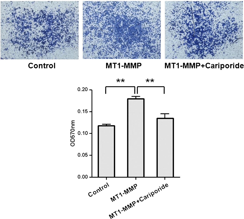 Fig. 3 – Effect of Cariporide on invasiveness of MDA-MB-231 cells overexpressed MT1-MMP. MT1-MMP was overexpressed in MDA-MB-231 cells by MT1-EGFP transfection and invasiveness of MDA-MB-231 cells was assessed by cell invasion assay with or without Cariporide for 12 h in 37 °C. **P<0.01.