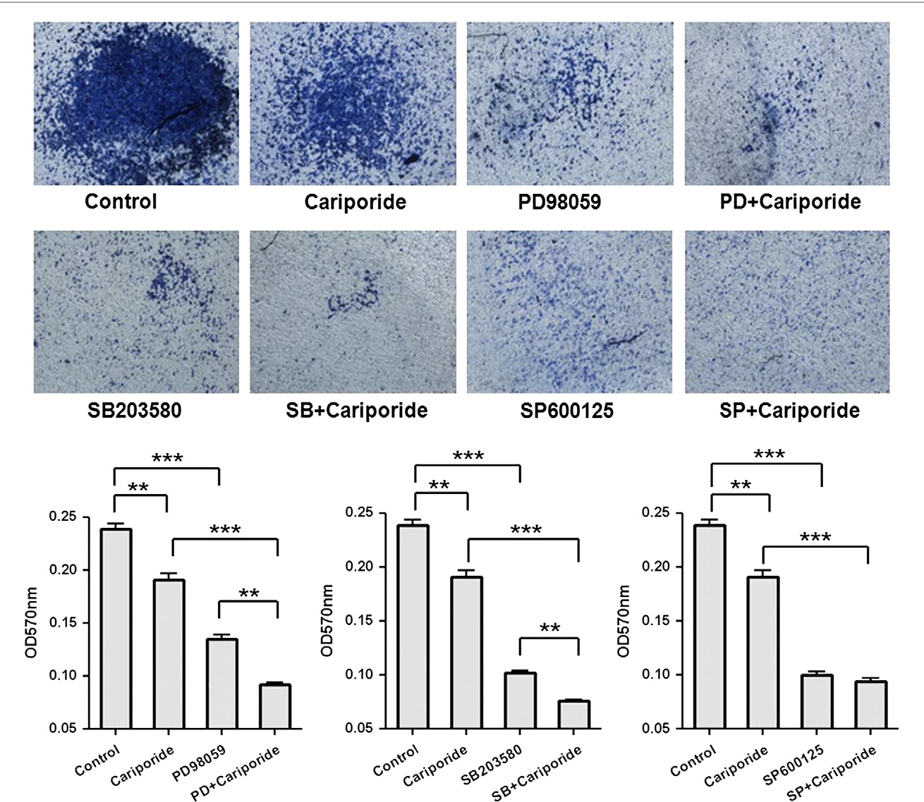 Fig. 6 – Effects of Cariporide and MAPK inhibitors on invasiveness of MDA-MB-231 cells. MDA-MB-231 cells were treated with Cariporide, MAPK inhibitors (ERK1/2 inhibitor PD98059, p38 MAPK inhibitor SB203580 and JNK inhibitor SP600125), and combination of Cariporide and MAPK inhibitors, respectively, as shown in the figure. The invasiveness of MDA-MB-231 cells with different treatments was tested by cell invasion assay for 12 h, 37 °C. The data represent the mean±SD of three independent experiments. **P<0.01, ***P<0.001.