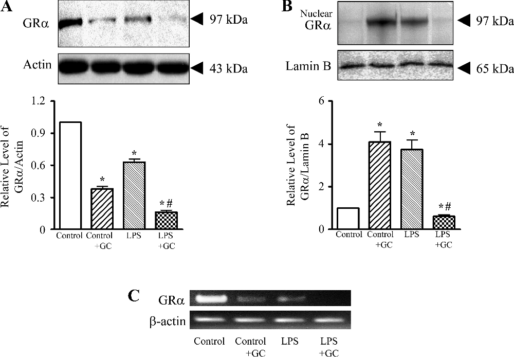 Fig. 1. Effect of treatment with methylprednisolone (GC; 40 mg/kg ip) on glucocorticoid receptor- (GR ) expression in lungs from control and LPS-challenged guinea pigs. In A and B, GR protein expression levels were assessed in the total and nuclear fractions, respectively. In the top trace of each panel, typical Western blots are shown. Actin served as loading control, and lamin B as a nuclear membrane marker. In C, GR mRNA and -actin mRNA were evaluated by RT-PCR as described in MATERIALS AND METHODS, and a representative example of ethidium bromide-stained agarose gels is shown. Values are means SE; n 4. *P 0.05 vs. control; #P 0.05 vs. LPS alone.