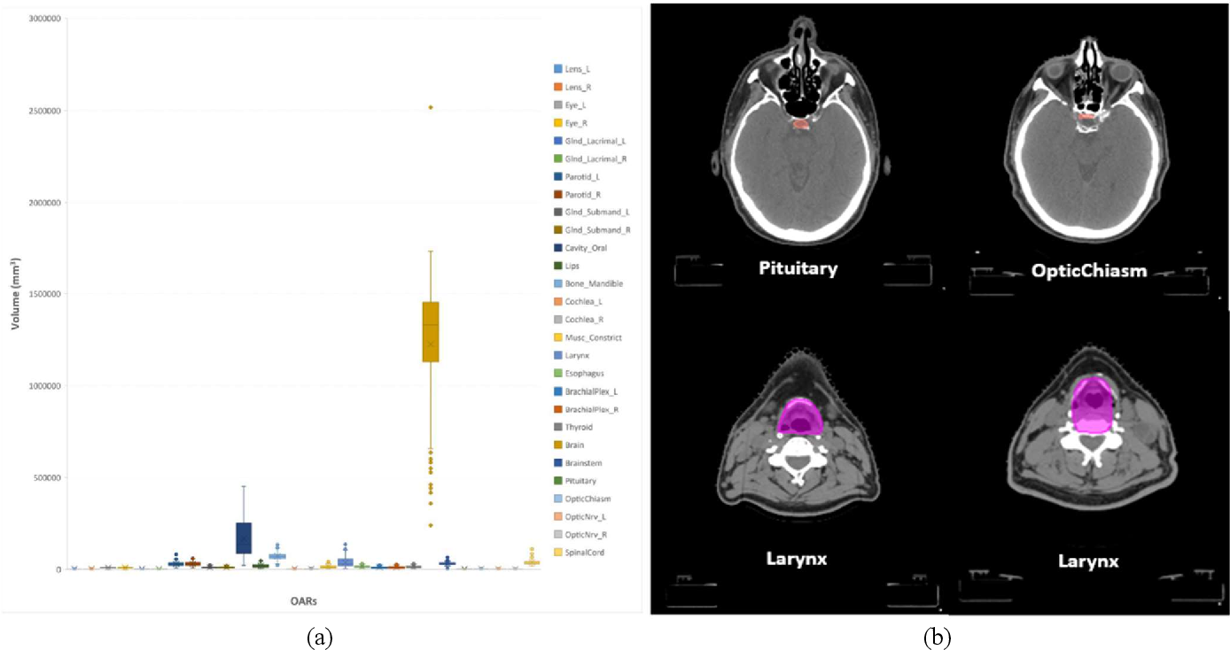 Figure 1 for Mining Domain Knowledge: Improved Framework towards Automatically Standardizing Anatomical Structure Nomenclature in Radiotherapy