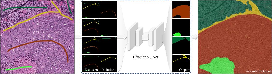 Figure 1 for Robust Interactive Semantic Segmentation of Pathology Images with Minimal User Input