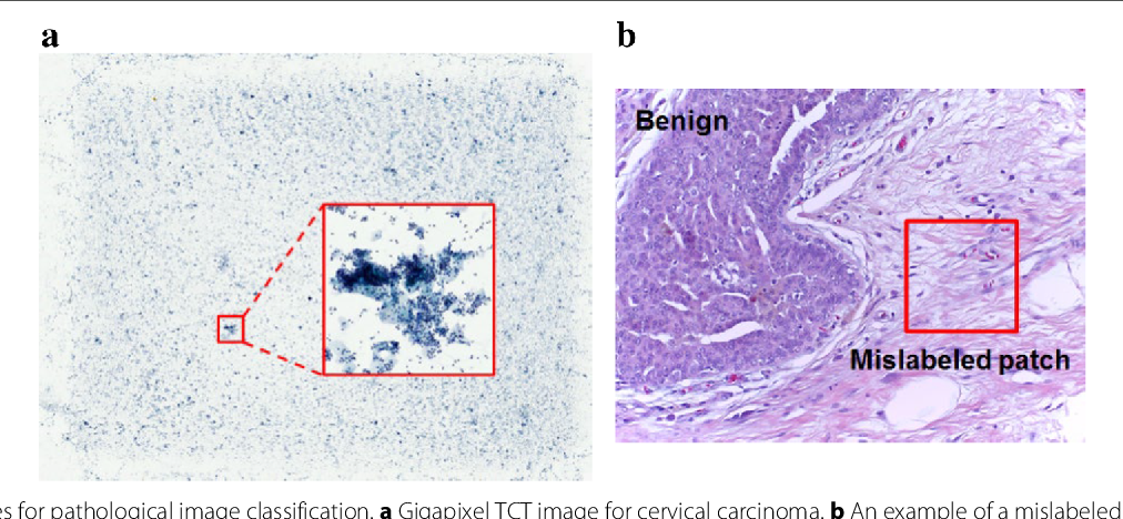 Figure 1 for Reversed Active Learning based Atrous DenseNet for Pathological Image Classification