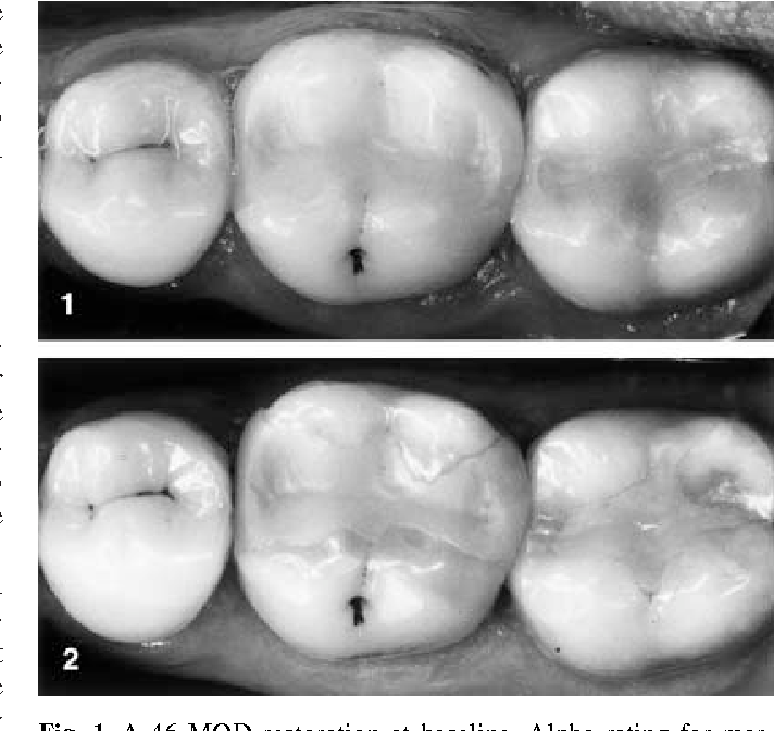Two-year evaluation of Class II resin-modified glass ionomer