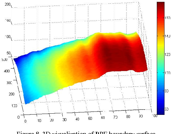 Figure 4 for A 3D Segmentation Method for Retinal Optical Coherence Tomography Volume Data