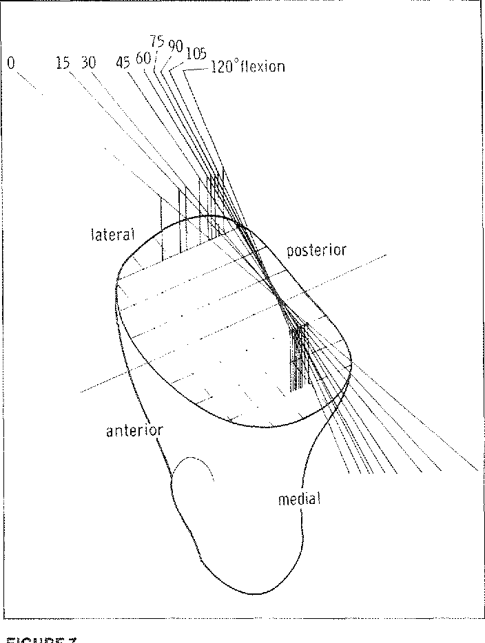 Figure 7 From External Knee Joint Design Based On Normal Motion