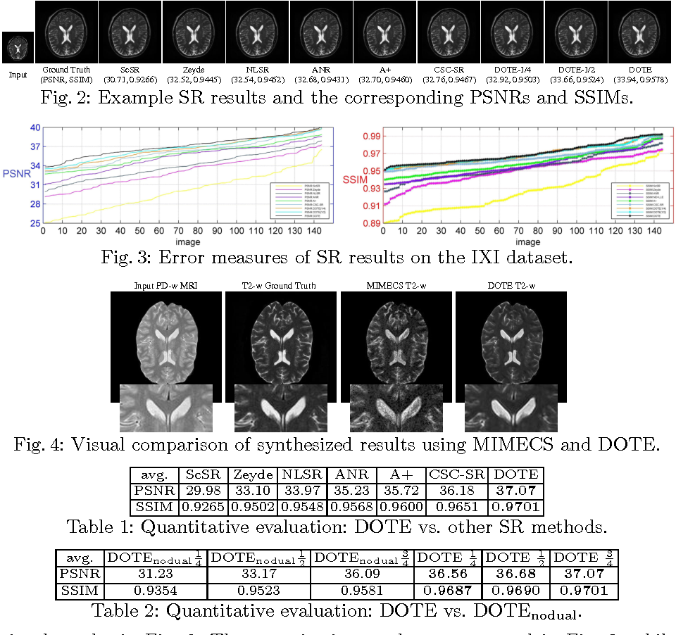 Figure 2 for DOTE: Dual cOnvolutional filTer lEarning for Super-Resolution and Cross-Modality Synthesis in MRI