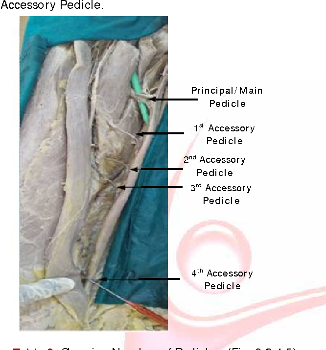 An Anatomical Study Of Gracilis Muscle And Its Vascular Pedicles