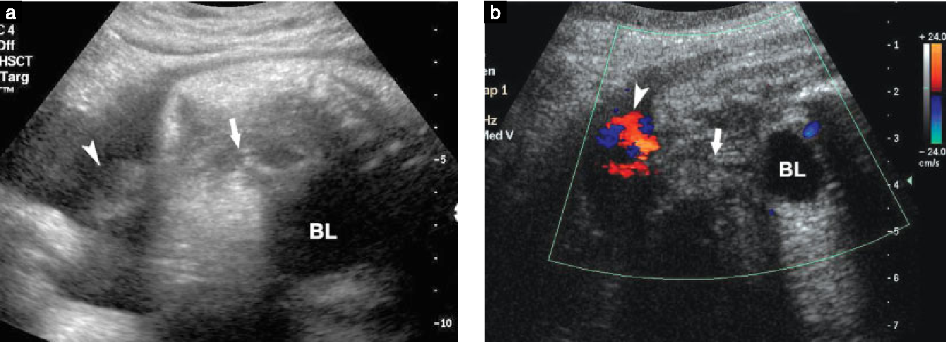 Figure 3 From Sonography Of Fetal Micturition Semantic Scholar