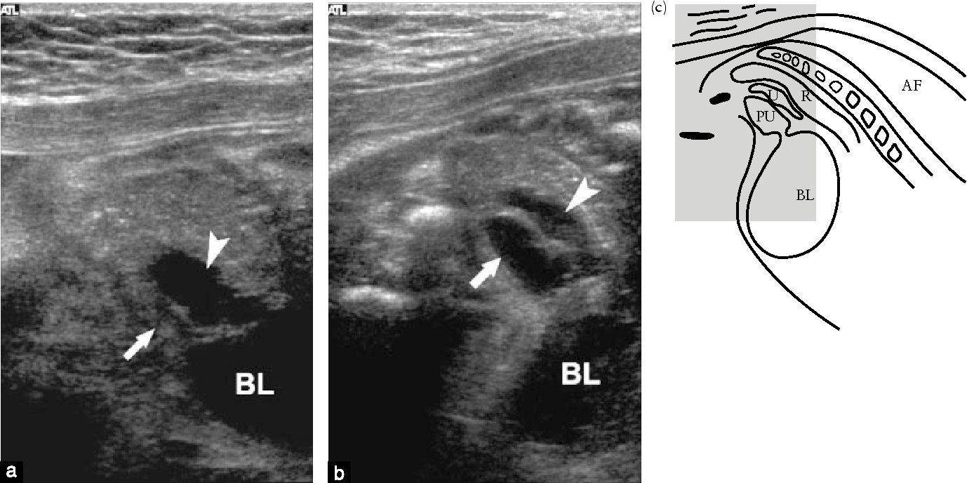 Figure 6 from Sonography of fetal micturition. - Semantic Scholar