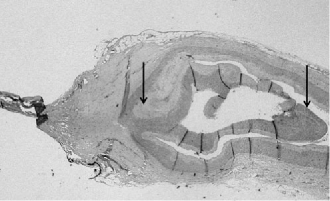 FIG. 3. Arterial wall dissection. The media is dissected from the adventitia at the seal site (arrows).